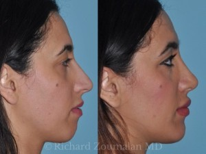 beverly-hills-female-rhinoplasty