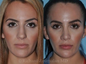 beverly-hills-rhinoplasty-02