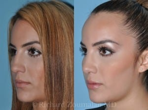beverly-hills-rhinoplasty-04