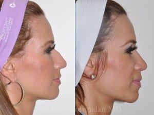 beverly-hills-rhinoplasty-before-after-01