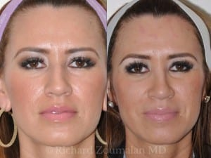 beverly-hills-rhinoplasty-before-after-03
