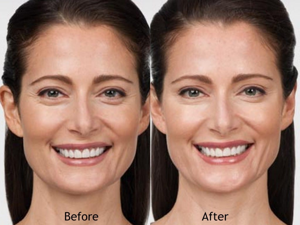 botox-before-after-allergan-1024x767