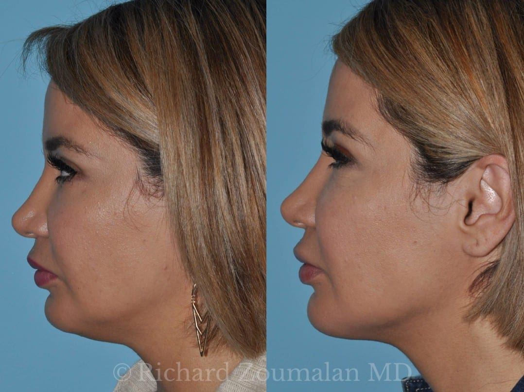 Facial liposuction before and after images 523