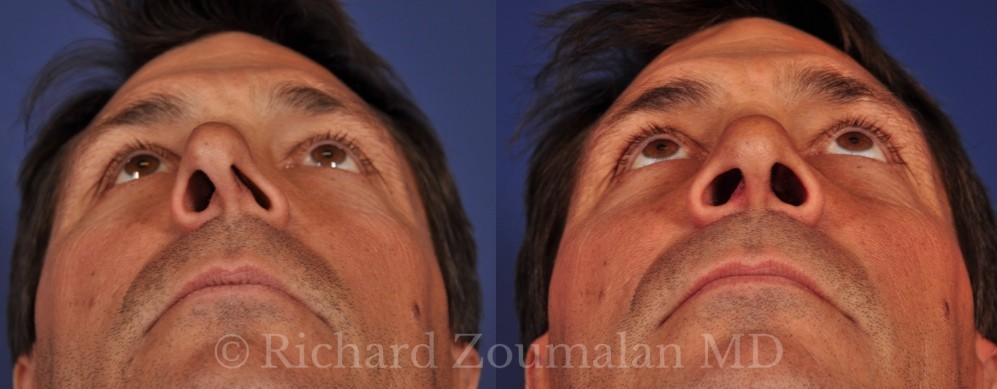 crooked-nose-before-after-01