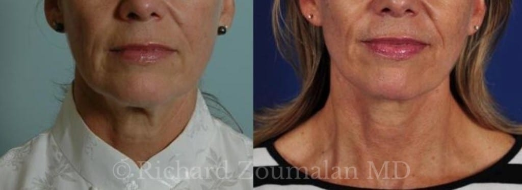 female-necklift-before-after-01