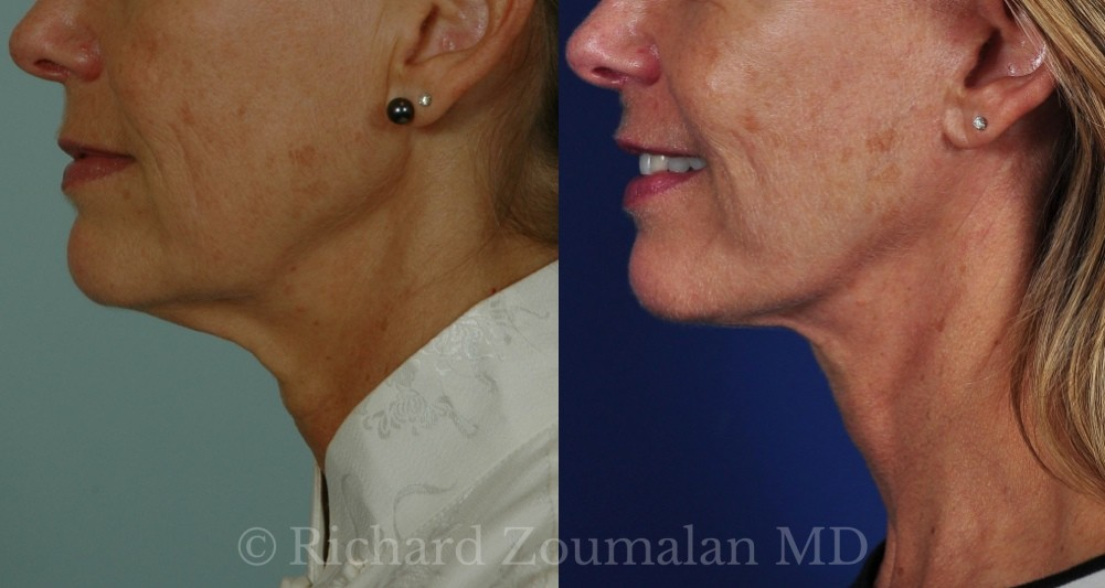 female-necklift-before-after-02