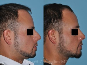 male-chin-implant-beverly-hills-01x-800x-c-default