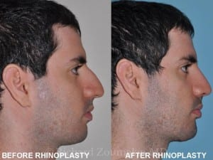 male-rhinoplasty-before-after-01