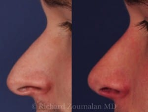 male-rhinoplasy-before-after