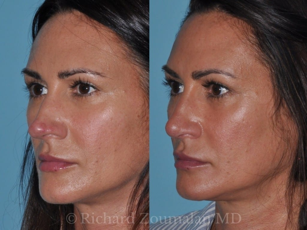 rhinoplasty-before-after-7-months-04