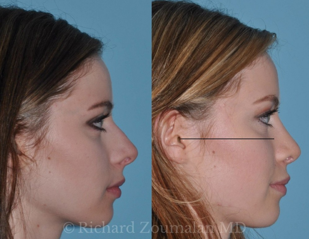 Celebrity rhinoplasty profile
