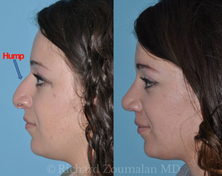 rhinoplasty-term-hump