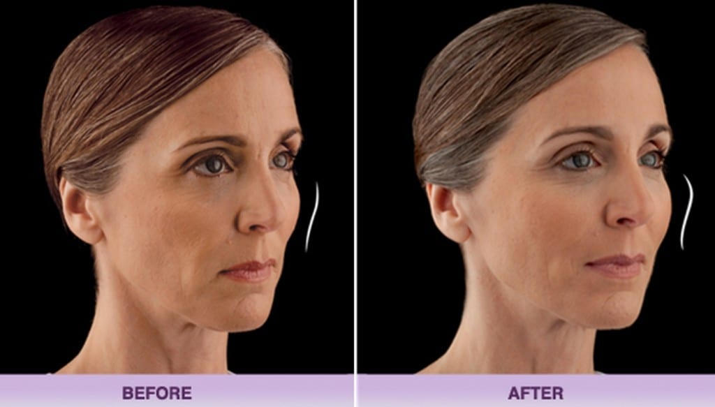 voluma-filler-cheek-volume-allergan-1024x584