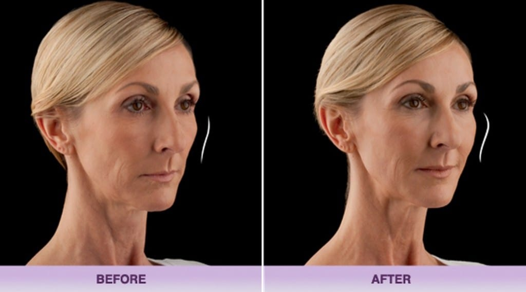voluma-filler-jawline-allergan-1024x570