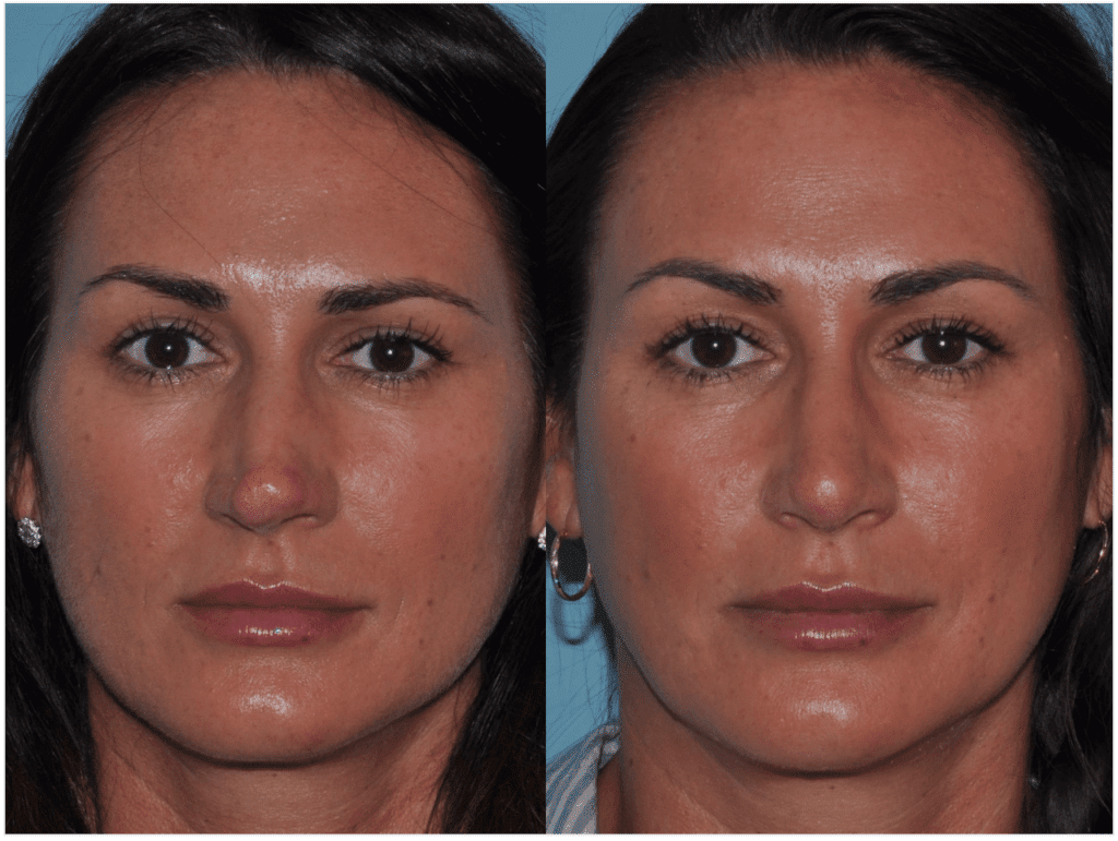 Crooked Nose - Beverly Hills Rhinoplasty