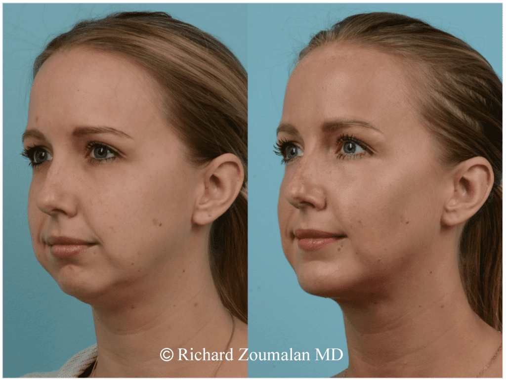 Image result for Chubby cheek surgery before and after